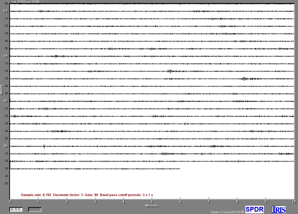 http://meteopedara.altervista.org/sismografo/SPDR.png